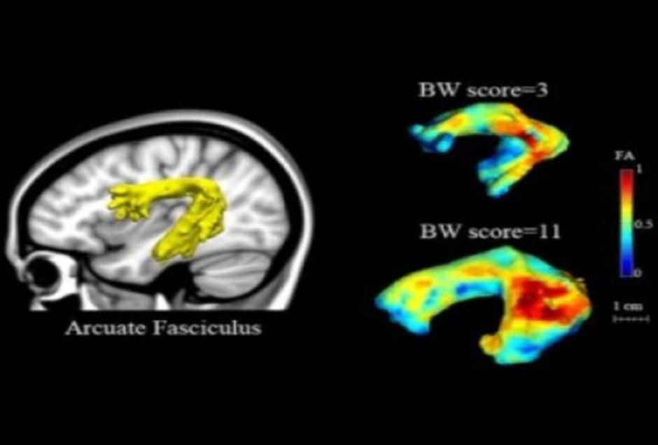Μπορεί μια απλή μαγνητική τομογραφία να προβλέψει τη δυσλεξία;