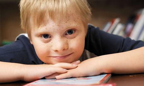 Σύνδρομο Down και Ανάγνωση-Τεχνικές παρέμβασης