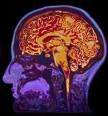 Εβδομάδα Ενημέρωσης για τον Εγκέφαλο